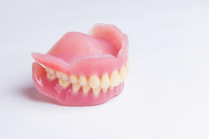 義歯の種類について
