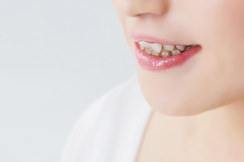 歯周病を悪化させる原因